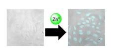 細胞内微量亜鉛の蛍光イメージング
